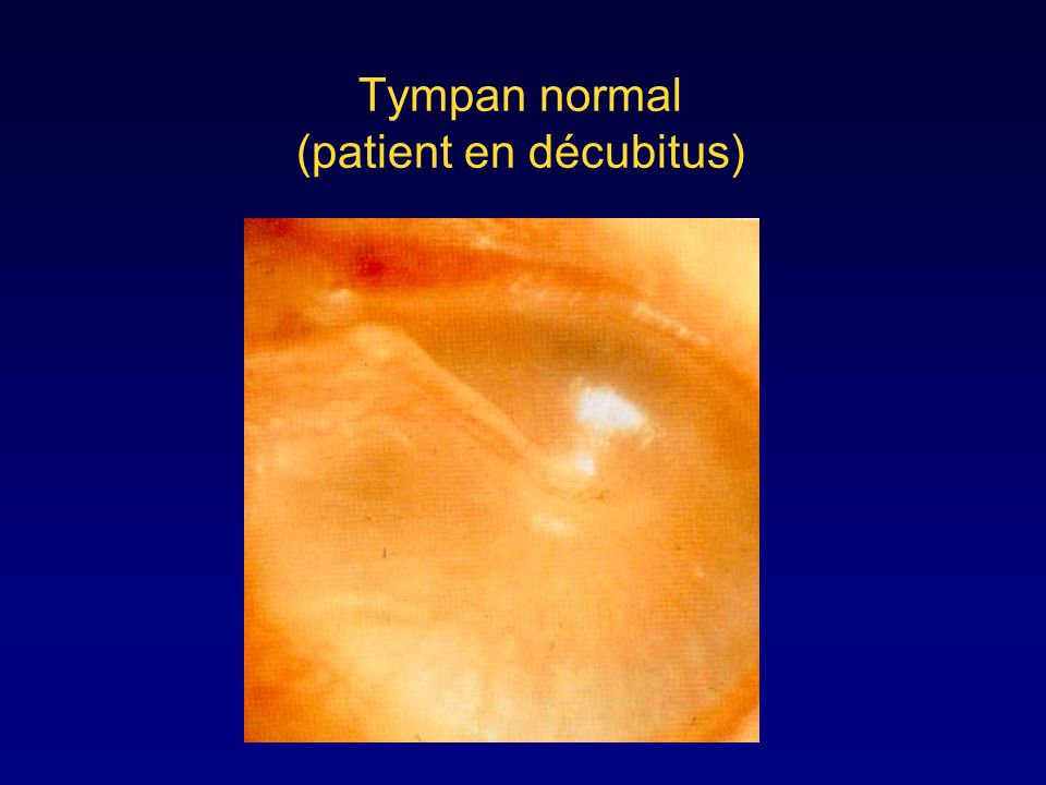 Tympan normal (patient en décubitus)