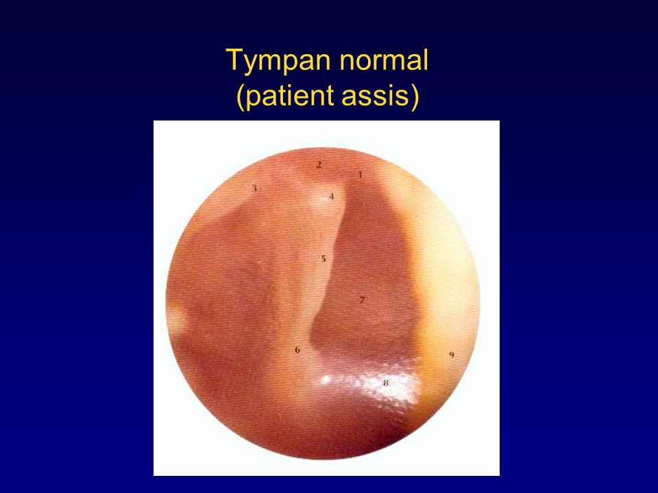 Tympan normal (patient assis)