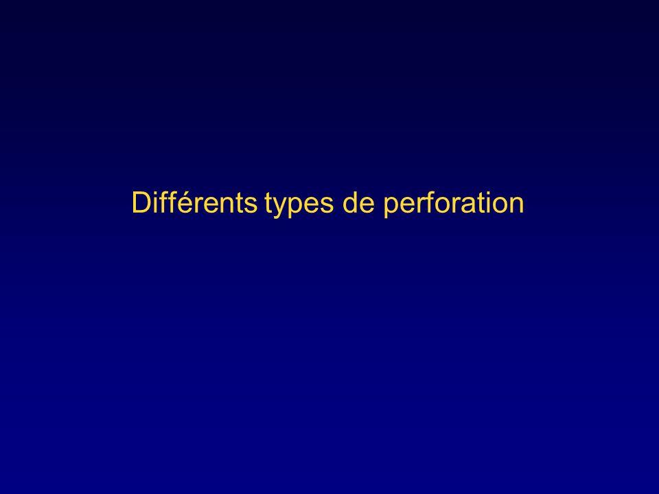 Différents types de perforation