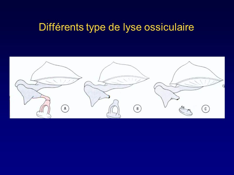 Différents type de lyse ossiculaire
