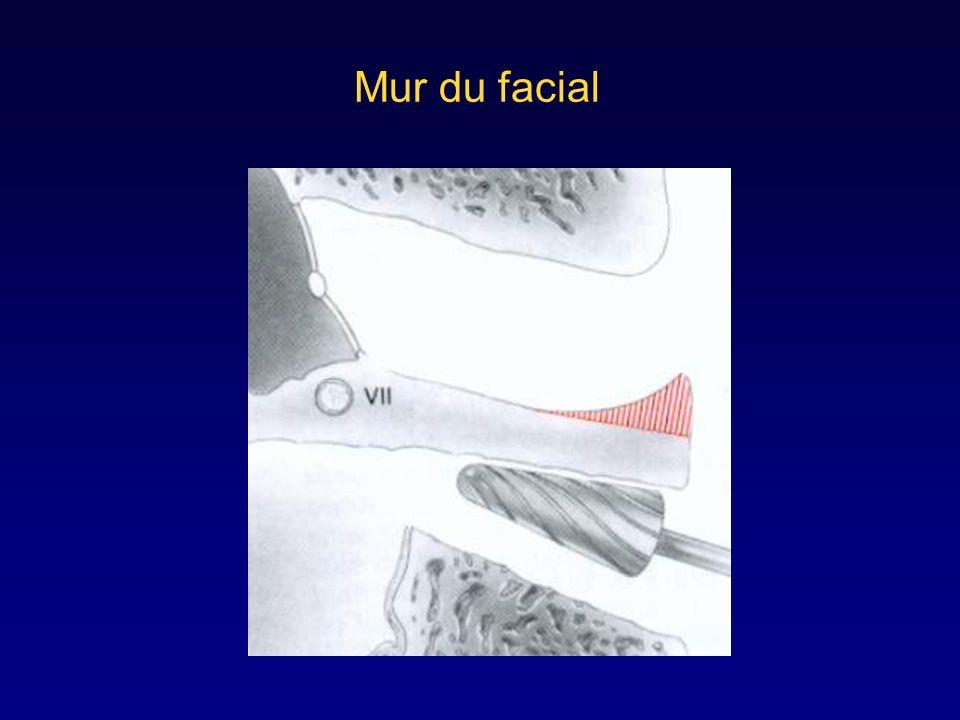 Mur du facial