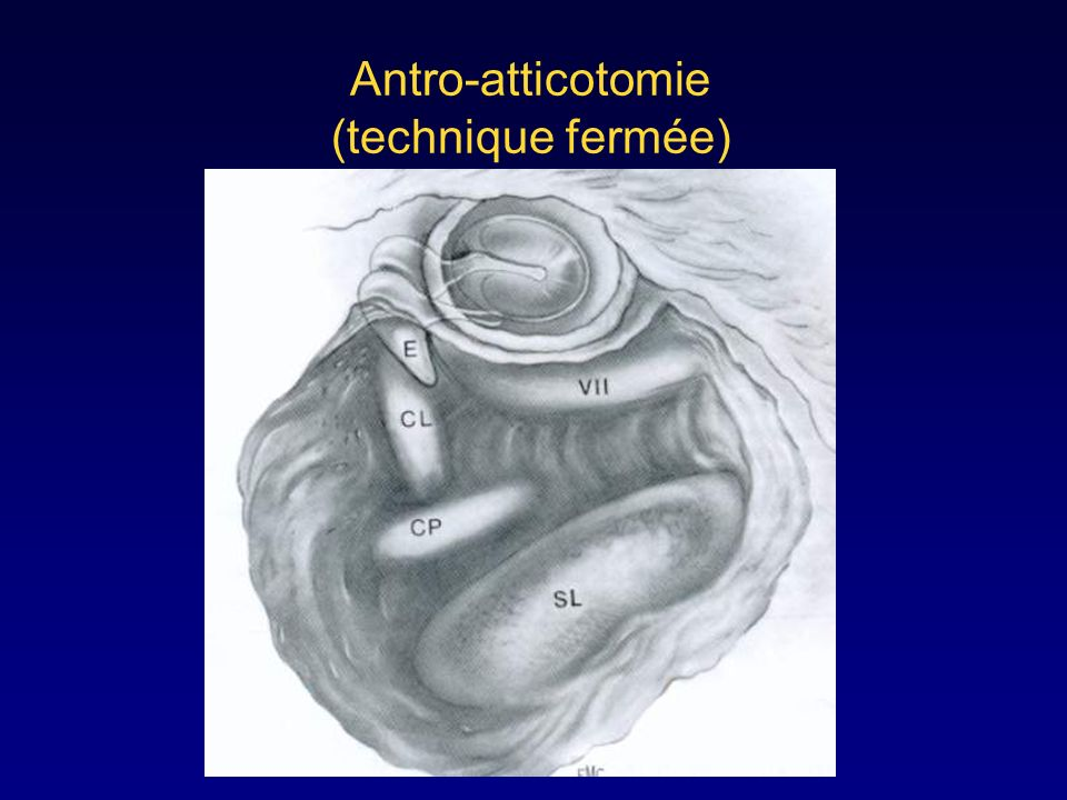 Antro-atticotomie (technique fermée)