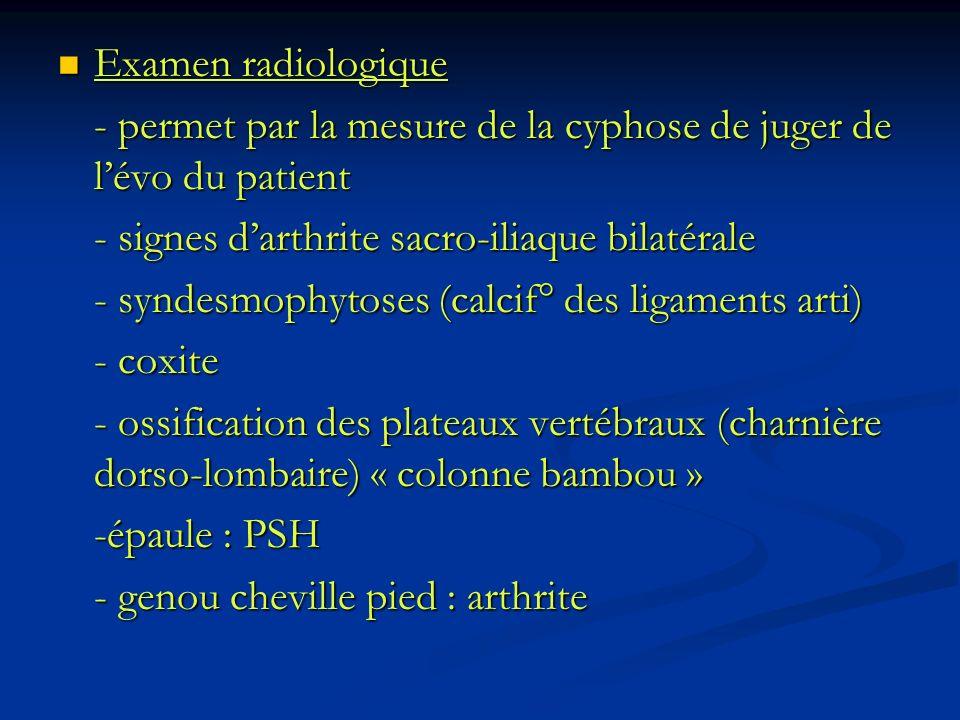 Examen radiologique - permet par la mesure de la cyphose de juger de l'évo du patient. - signes d'arthrite sacro-iliaque bilatérale.