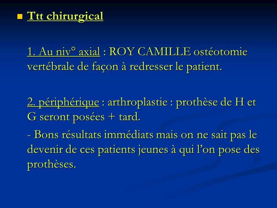 Ttt chirurgical 1. Au niv° axial : ROY CAMILLE ostéotomie vertébrale de façon à redresser le patient.