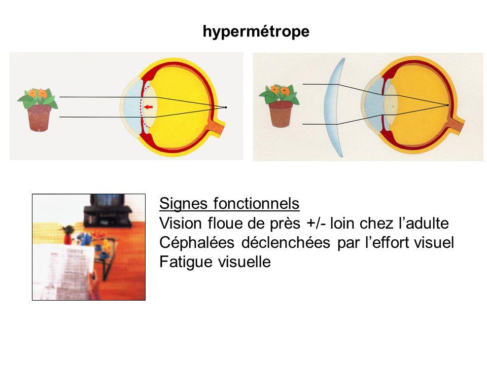 hypermétropeSignes fonctionnels. Vision floue de près +/- loin chez l'adulte. Céphalées déclenchées par l'effort visuel.