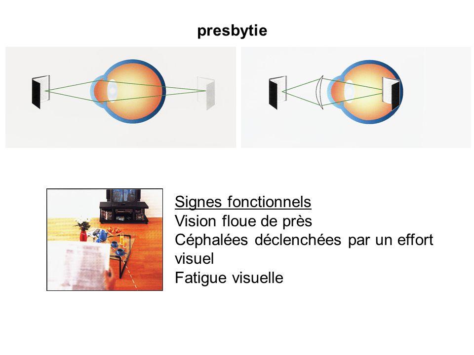 presbytie Signes fonctionnels. Vision floue de près.