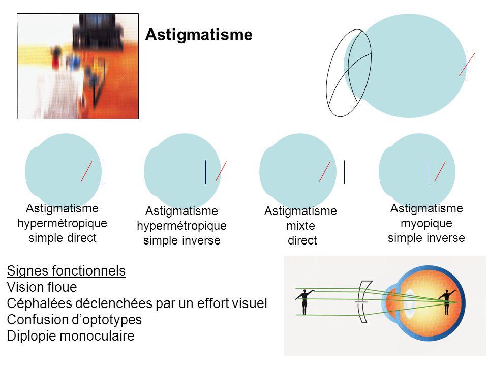Astigmatisme Signes fonctionnels Vision floue