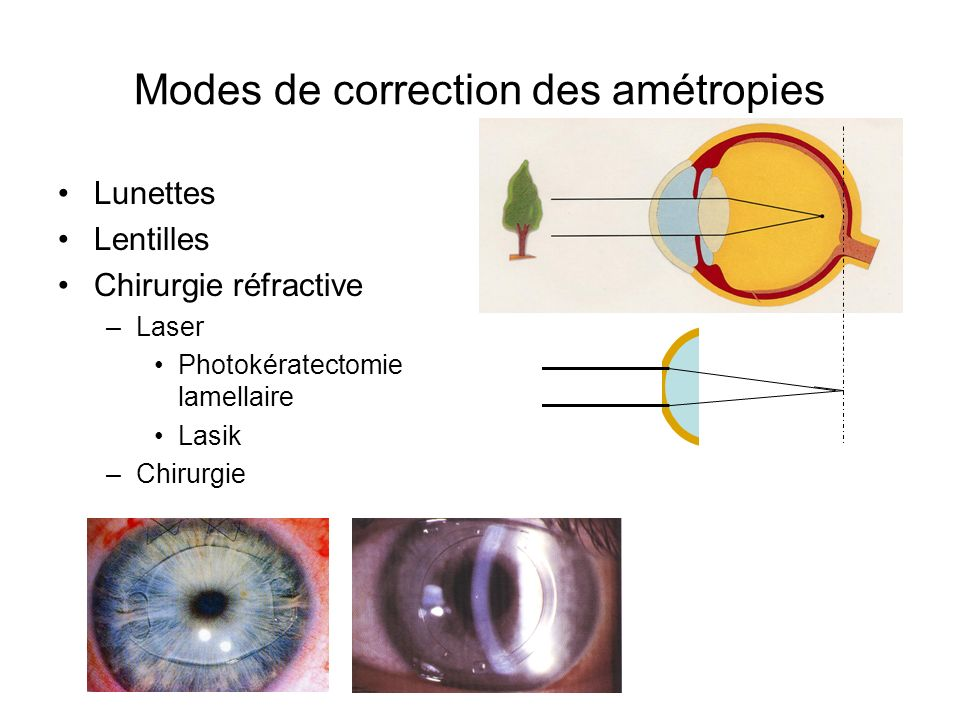 Modes de correction des amétropies