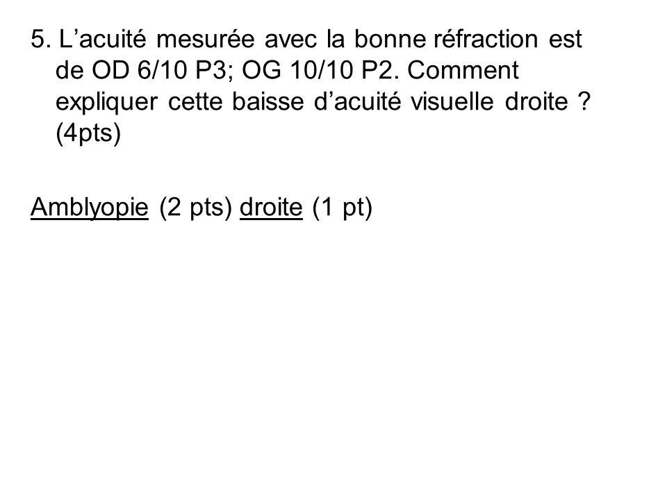 5. L'acuité mesurée avec la bonne réfraction est de OD 6/10 P3; OG 10/10 P2. Comment expliquer cette baisse d'acuité visuelle droite (4pts)