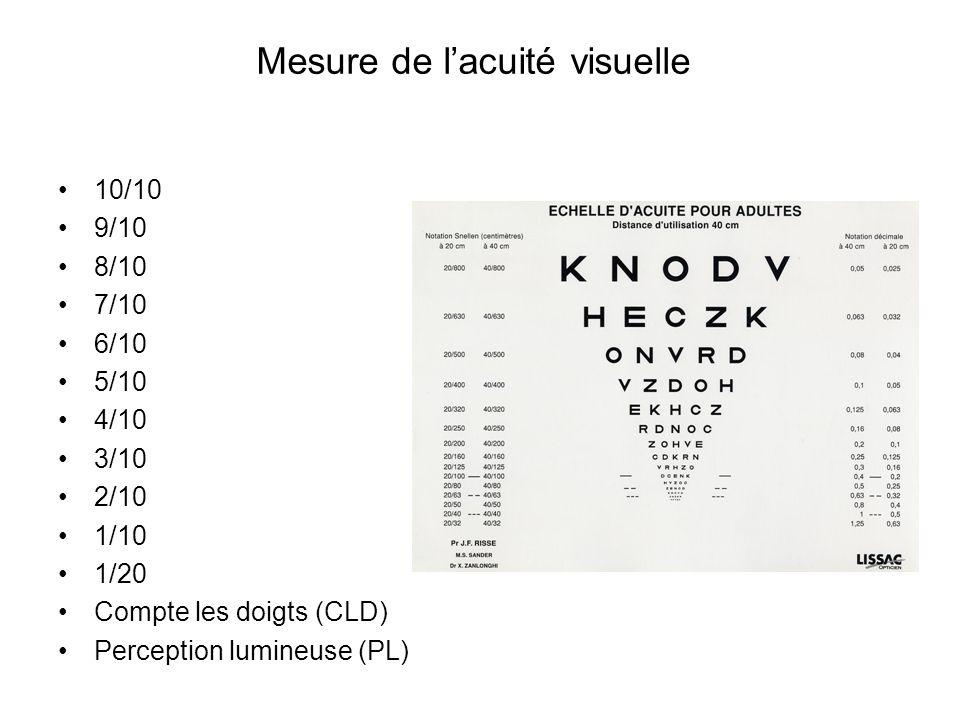 Mesure de l'acuité visuelle