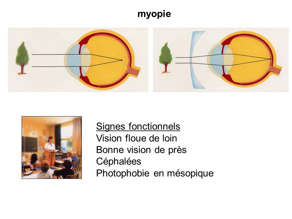 myopieSignes fonctionnels.Vision floue de loin. Bonne vision de près.