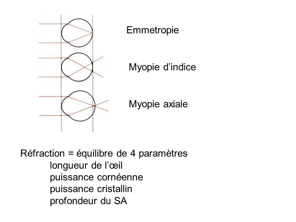 Emmetropie Myopie d'indice. Myopie axiale. Réfraction = équilibre de 4 paramètres. longueur de l'œil.