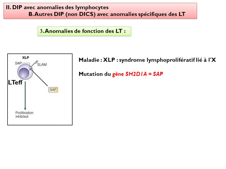 LTeff II. DIP avec anomalies des lymphocytes