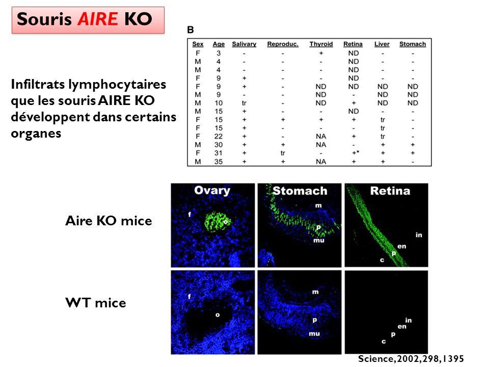 Souris AIRE KO Infiltrats lymphocytaires que les souris AIRE KO développent dans certains organes. Aire KO mice.