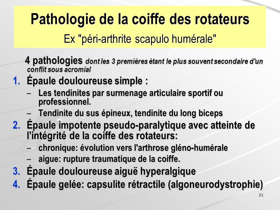 Pathologie de la coiffe des rotateurs Ex péri-arthrite scapulo humérale