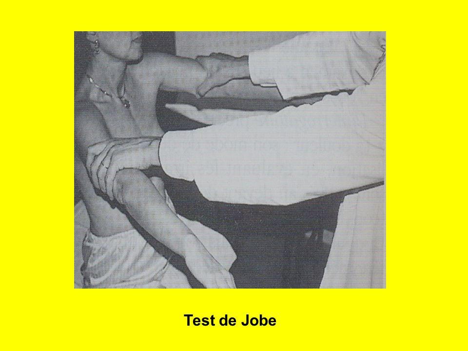Test de Jobe