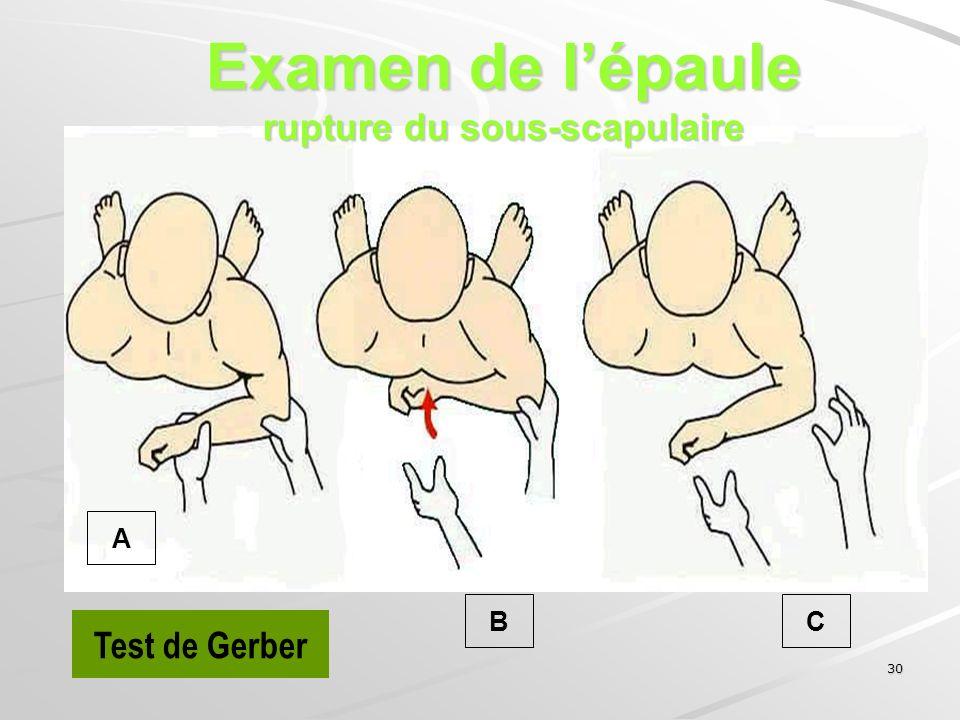Examen de l'épaule rupture du sous-scapulaire