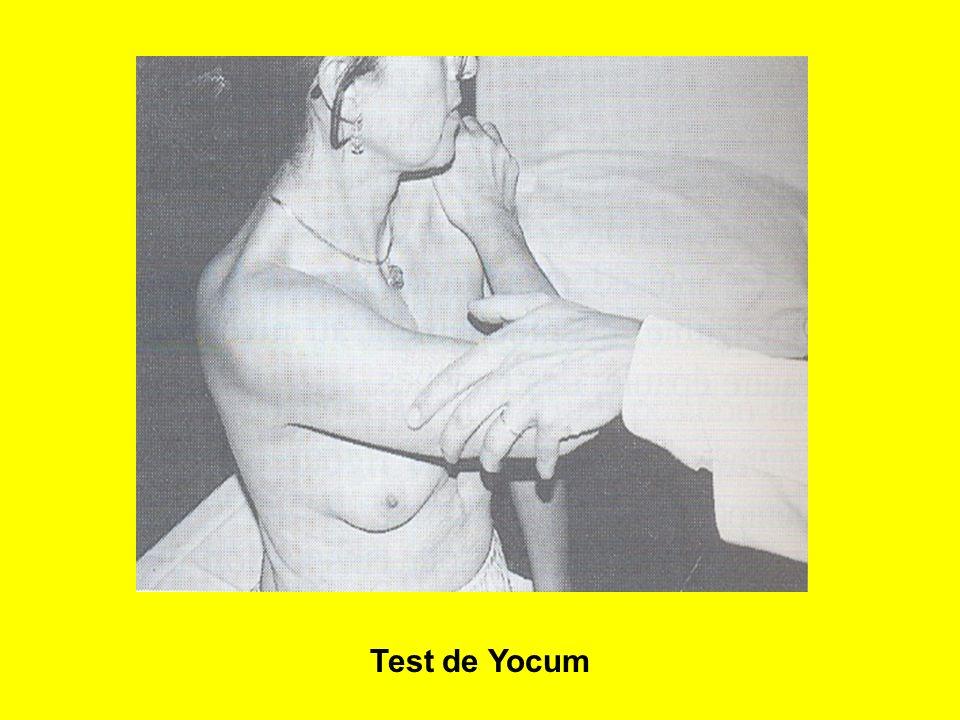 Test de Yocum
