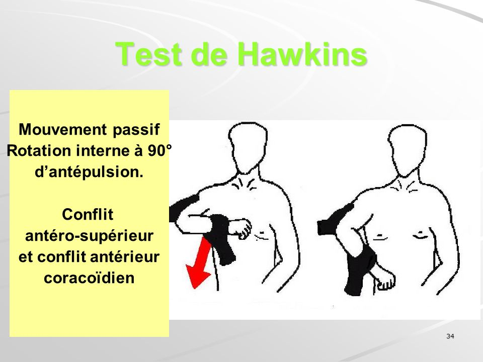 Test de Hawkins Mouvement passif Rotation interne à 90° d'antépulsion.