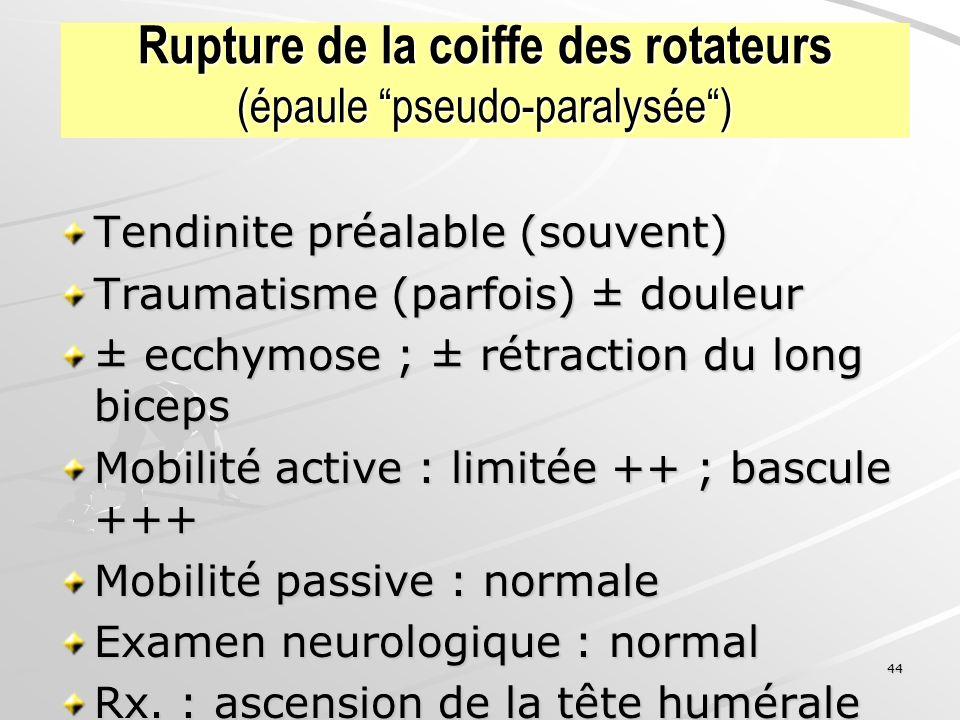 Rupture de la coiffe des rotateurs (épaule pseudo-paralysée )