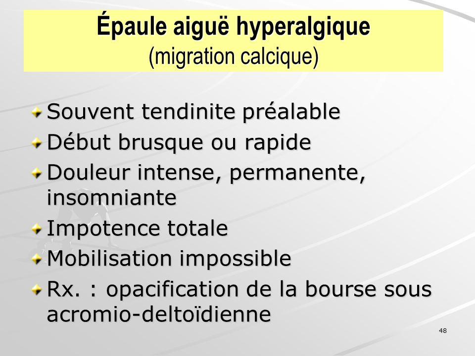 Épaule aiguë hyperalgique (migration calcique)