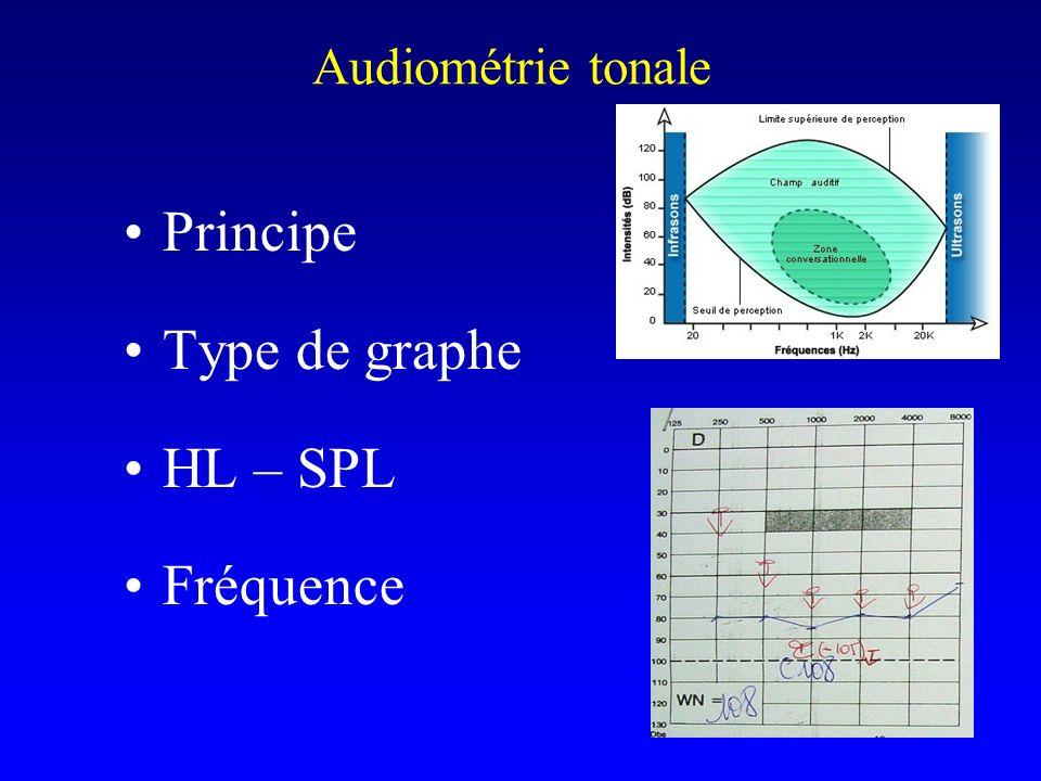 Principe Type de graphe HL – SPL Fréquence Audiométrie tonale