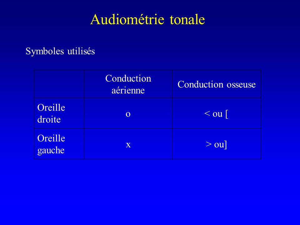 Audiométrie tonale Symboles utilisés Conduction aérienne