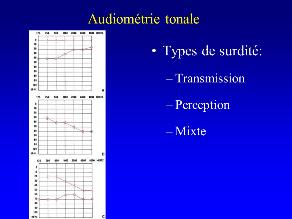 Audiométrie tonale Types de surdité: Transmission Perception Mixte