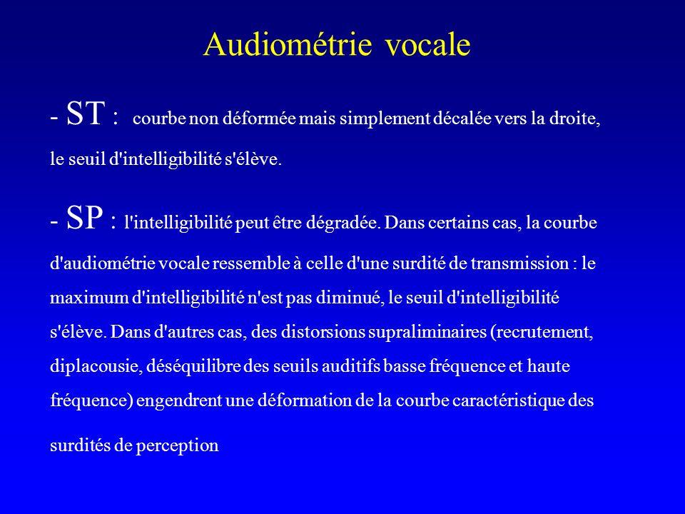 Audiométrie vocale - ST : courbe non déformée mais simplement décalée vers la droite, le seuil d intelligibilité s élève.