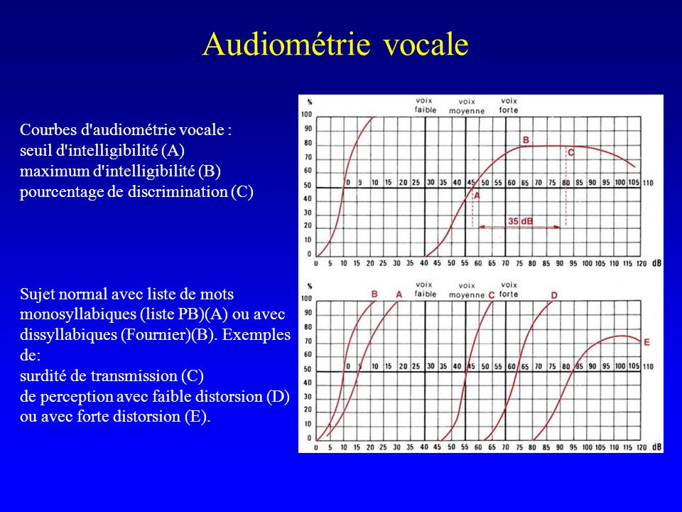 Audiométrie vocale Courbes d audiométrie vocale :