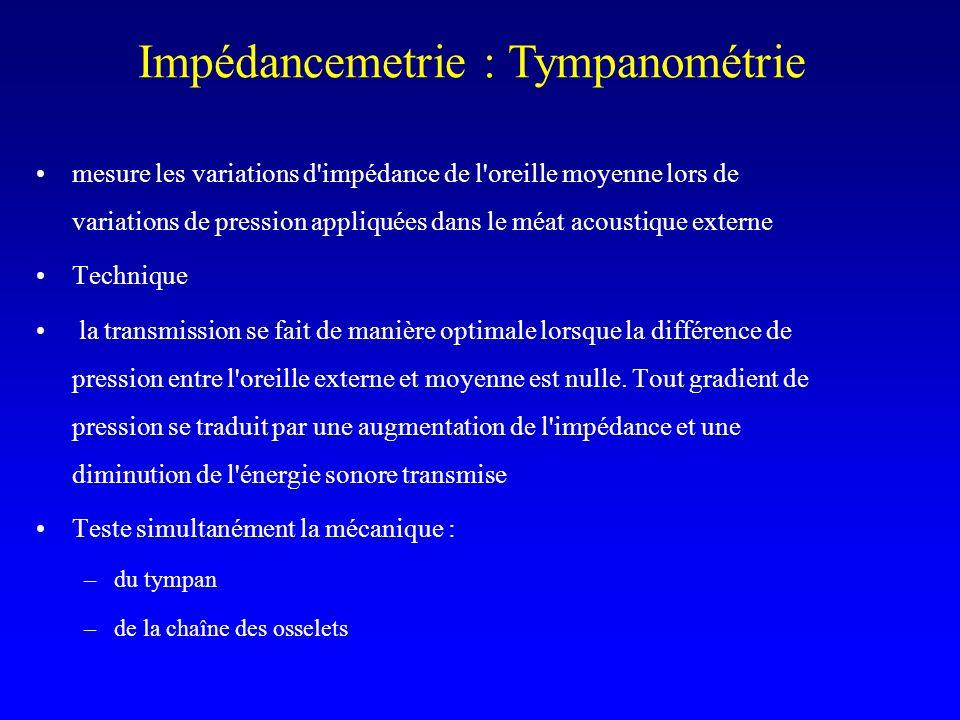 Impédancemetrie : Tympanométrie