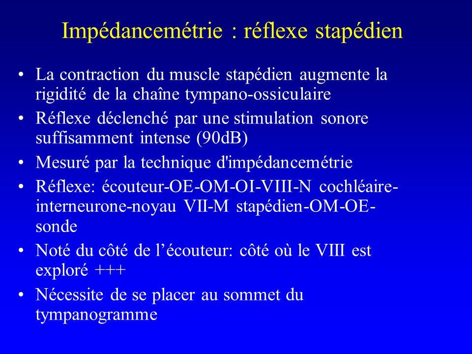 Impédancemétrie : réflexe stapédien