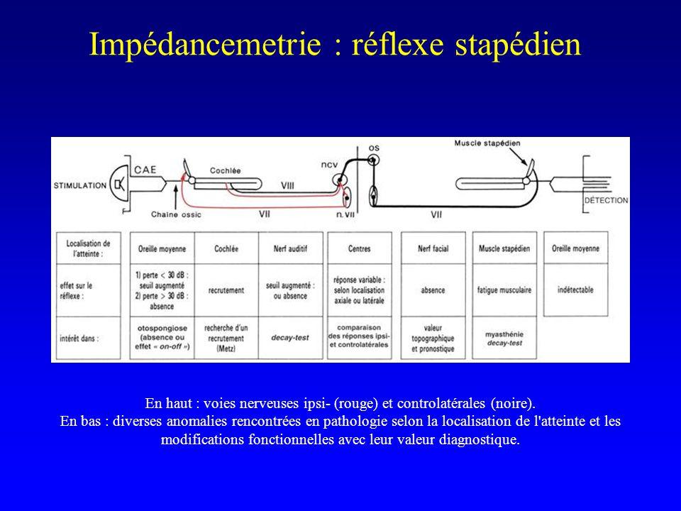 Impédancemetrie : réflexe stapédien