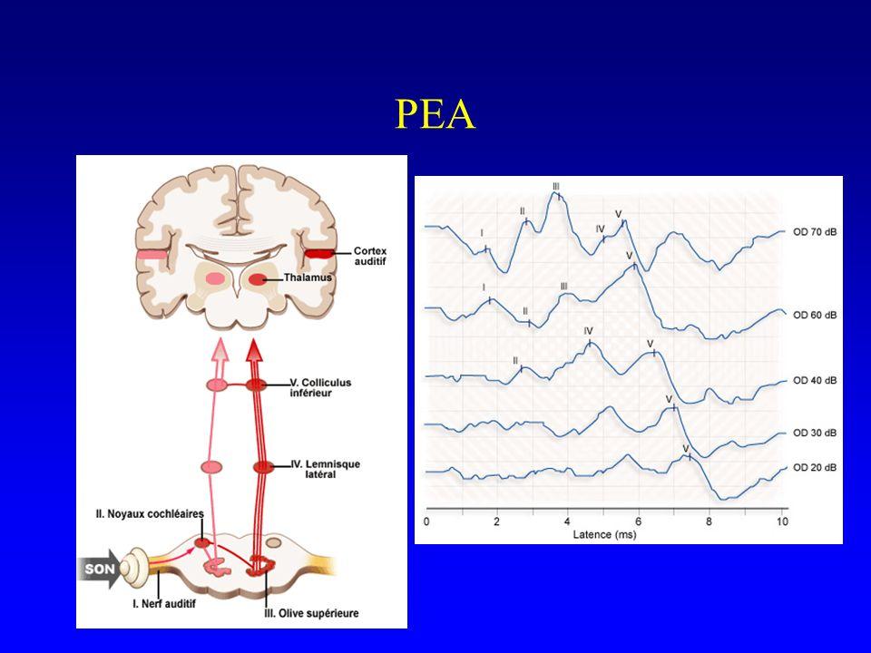 PEA Schéma de référence des voies auditives permettant de repérer le site anatomique des différentes ondes du PEA. - nerf auditif = onde I.