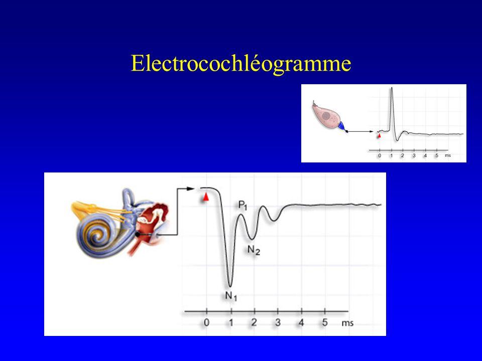 Electrocochléogramme