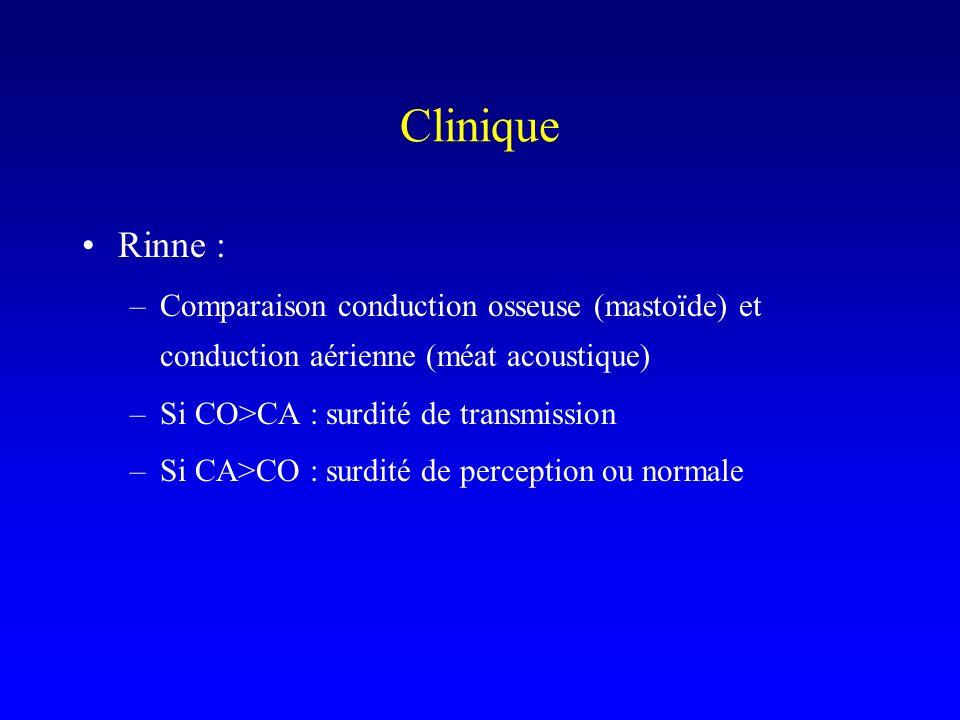 Clinique Rinne : Comparaison conduction osseuse (mastoïde) et conduction aérienne (méat acoustique)