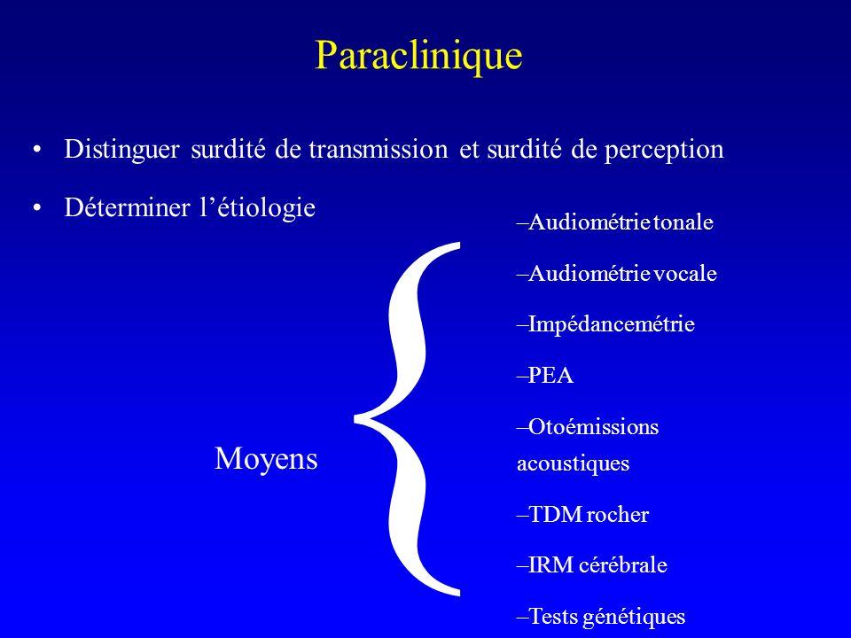 Paraclinique Distinguer surdité de transmission et surdité de perception. Déterminer l'étiologie. {