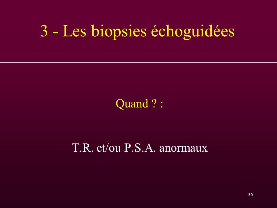 3 - Les biopsies échoguidées