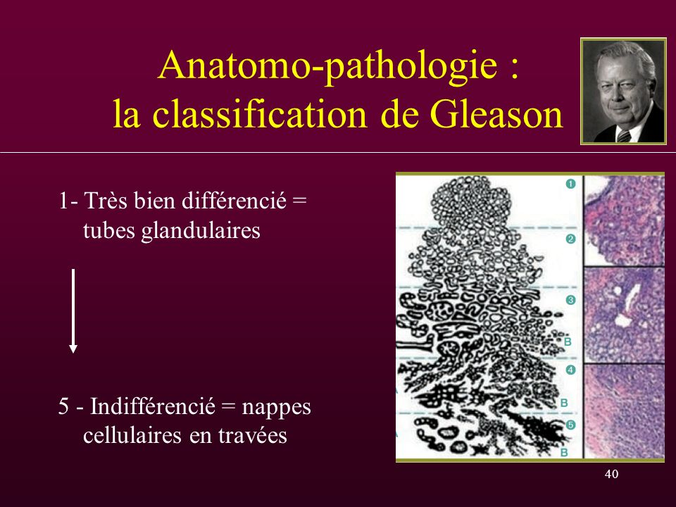 Anatomo-pathologie : la classification de Gleason