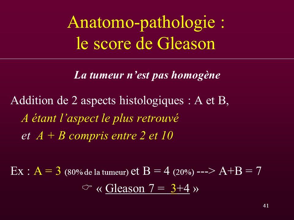 Anatomo-pathologie : le score de Gleason
