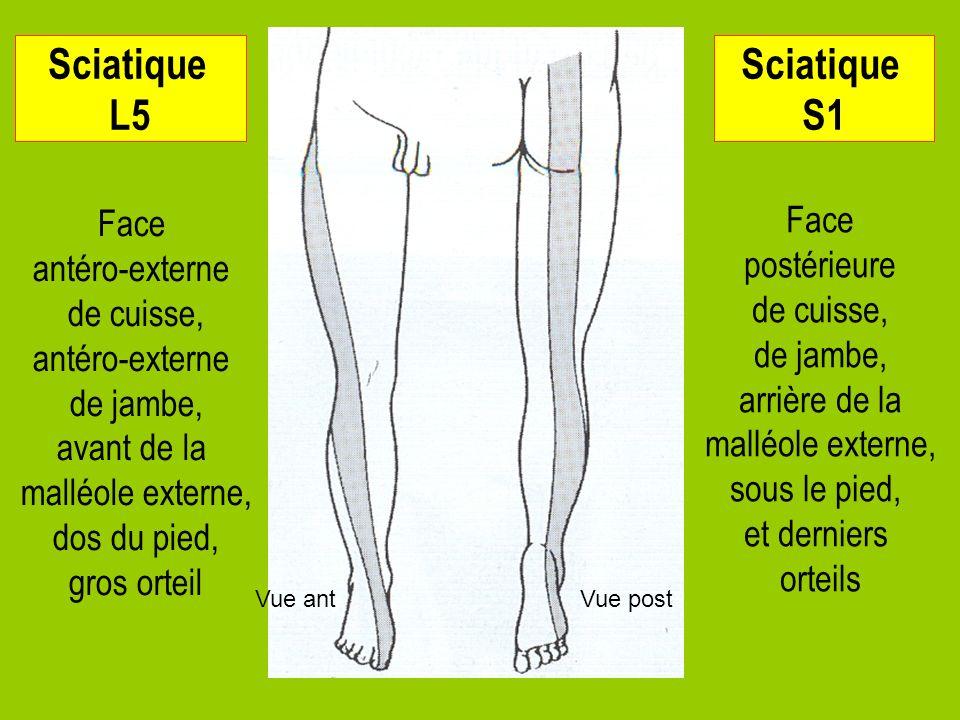 Sciatique L5 Sciatique S1