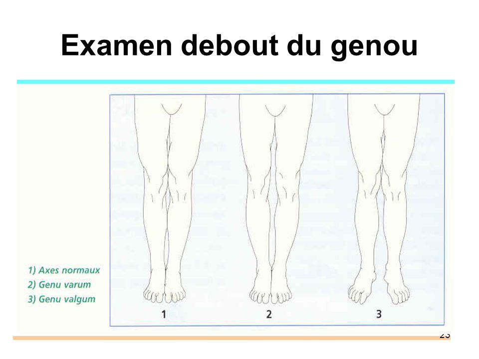 Examen debout du genou