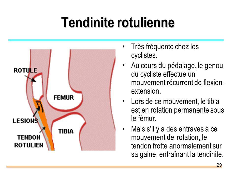Tendinite rotulienne Très fréquente chez les cyclistes.