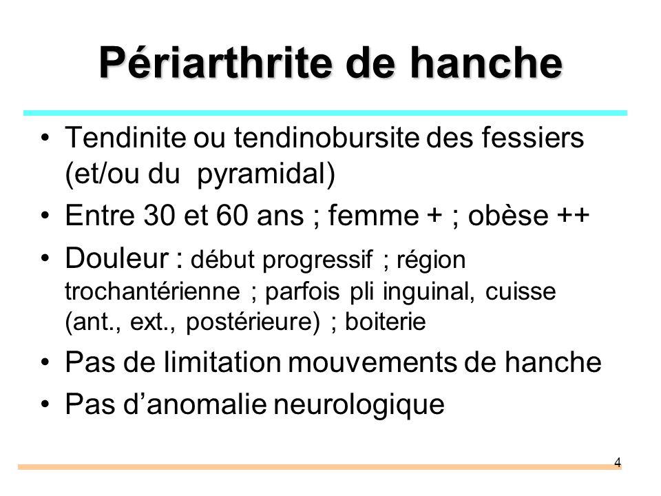 Périarthrite de hanche