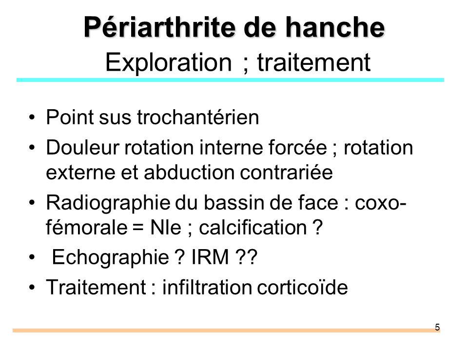 Périarthrite de hanche Exploration ; traitement