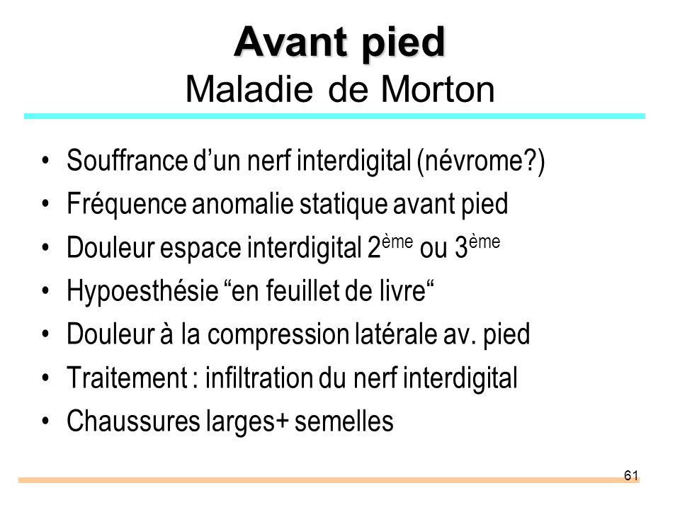 Avant pied Maladie de Morton