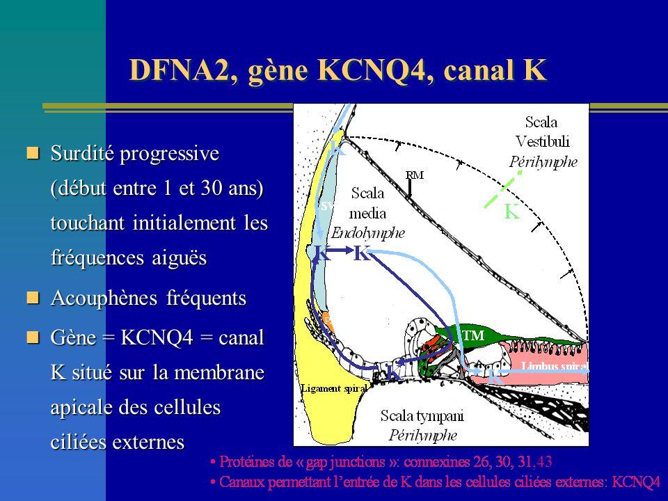 DFNA2, gène KCNQ4, canal K ,43. Surdité progressive (début entre 1 et 30 ans) touchant initialement les fréquences aiguës.