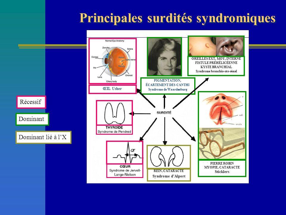 Principales surdités syndromiques