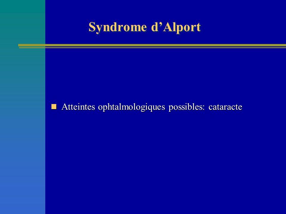 Syndrome d'Alport Atteintes ophtalmologiques possibles: cataracte