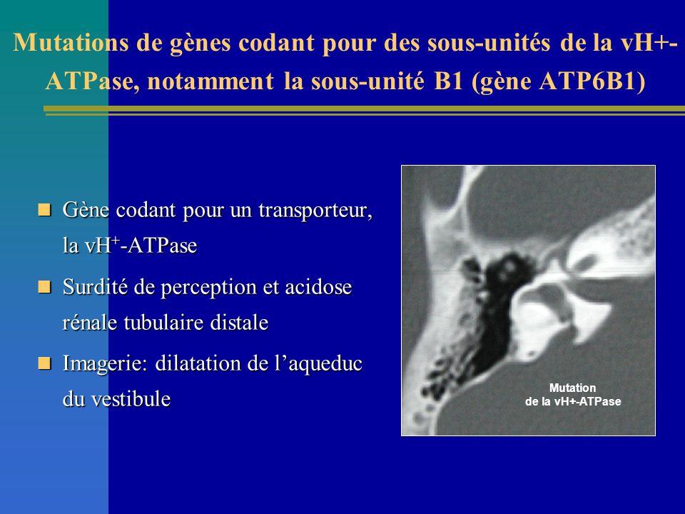 Mutations de gènes codant pour des sous-unités de la vH+-ATPase, notamment la sous-unité B1 (gène ATP6B1)